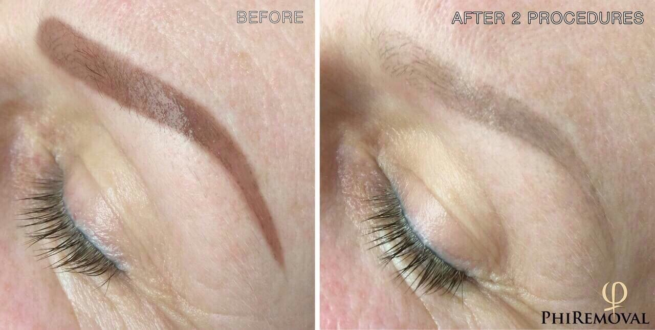 How To Get Permanent Cosmetics Removed Including Bad Microblading