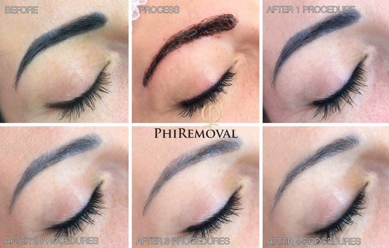 How To Get Permanent Cosmetics Removed (Including Bad Microblading)